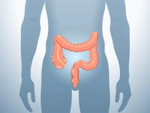 Colon diagram C. diff